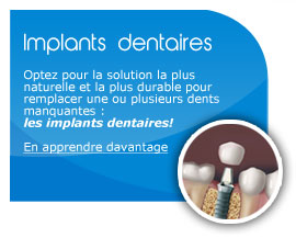 carre-implant